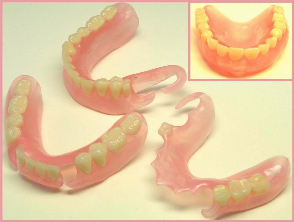 Как быть если зубной протез сделали плохо 282