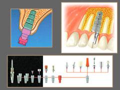 Система имплантата