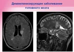 МРТ. Демиелинизирующее заболевание головного мозга. Медицинский центр «Черноземье-Регион»