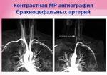 Контрастная МР ангиография брахиоцефальных артерий. Медицинский центр «Черноземье-Регион»