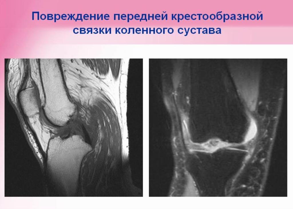 """Повреждение коленного сустава.  Медицинский центр  """"Черноземье-Регион """""""