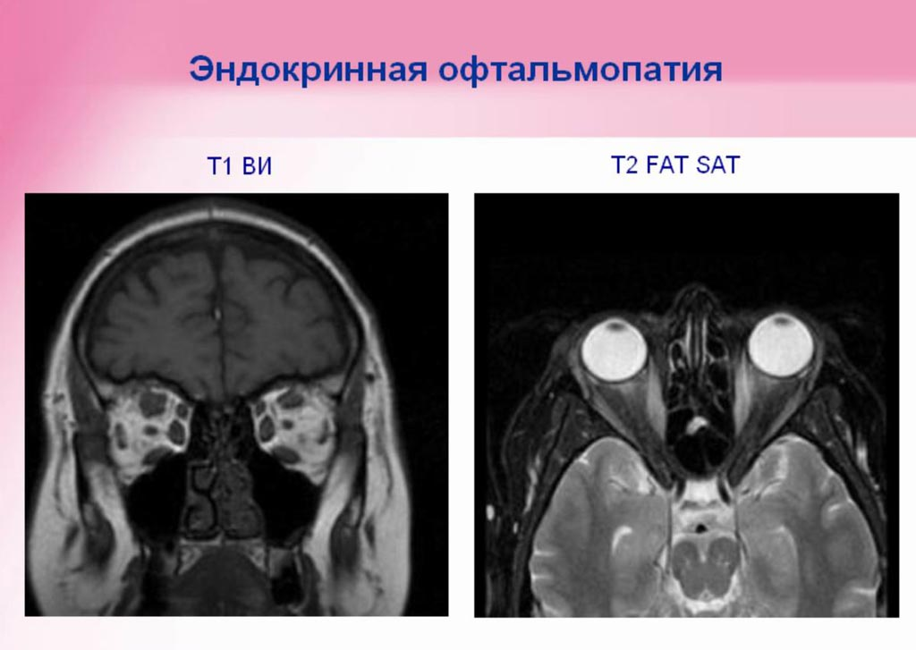 Офтальмотомия фото