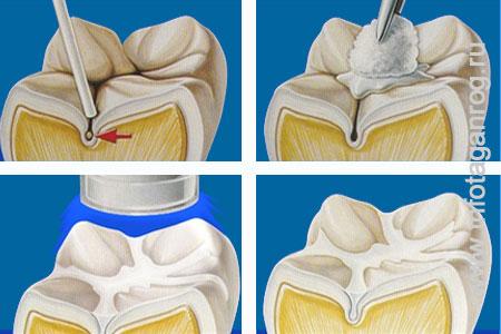 Арт-метод продолжение. Стоматология