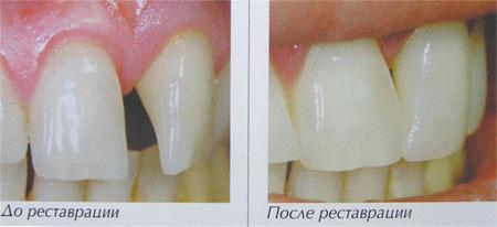Новые высокоэстетичные реставрационные материалы. Сеть стоматологических кабинетов «Стоматология 32»