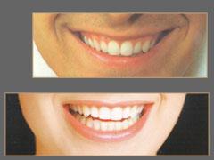 Имплантаты — новые зубы